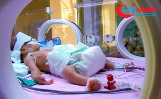 Dünyada günde 7 bin bebek bir ayını doldurmadan ölüyor