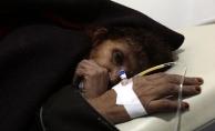 Yemen'deki kolera salgınının tarihteki en büyük salgın olduğu açıklandı