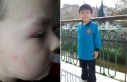 İlkokul öğrencisi okulda dövüldü, anne şikayetçi...
