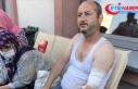 Sakarya'daki patlamada yaralanan işçi Recep...