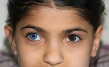 Yasin ve Elif kardeşler hayata çift renk bakıyor