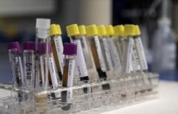 Viral hepatitler tüm dünyada halk sağlığı sorunu...