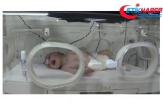 5 günlük bebeğin bağırsaklarından 1 kilo 300...