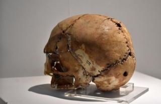 10 bin yıl önce ilk beyin ameliyatı yapılan kafatasına...