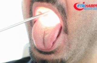 Geçmeyen ağız kokusu 'dil kanseri' belirtisi...
