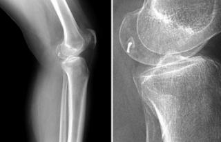 Ameliyatta bacağında tıbbi kamera unutulduğu iddiasıyla...
