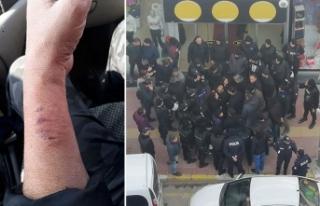 Kadın polisin kolunu ısıran HDP'li Aydeniz'e...
