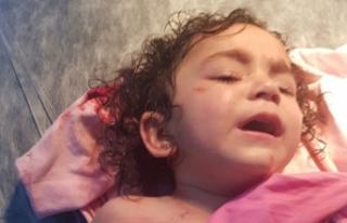 Rottweiler'ın saldırdığı 2 yaşındaki Almila...
