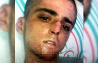 Teröristi, hastanede narkozun etkisi geçerken 'YPG'...