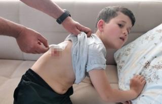 9 yaşındaki Kerem, köpeklerin saldırısına uğradı