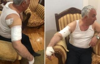 Arpaçay Belediye Başkanı, köpek saldırısında...