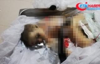 9 aylık Muhammed bebek terör örgütü YPG/PKK'nın...
