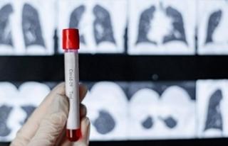 Covid-19 sonrası akciğerlerde kalıcı hasar endişesi