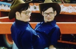 Dünyanın en uzun hayatta kalan yapışık ikizleri...