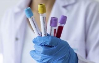 Kovid-19 aşı bulunduktan sonra 'diğer viral...
