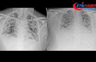 Koronavirüsün akciğerdeki ağır tahribatı, hastaların...