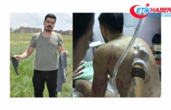 Ankara'da dehşet! 25 köpek birden saldırdı