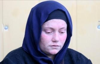 Iraklı Mıhabat İsmael Ali: Yüzümüzü ölüm yoluna çevirdiler