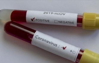 Nörolojik hastalığı olanlara Kovid-19 uyarısı