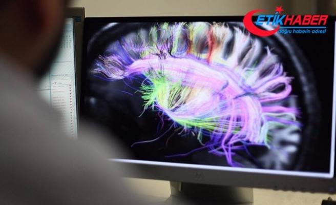 Beynin elektrik bağlantılarının haritası çıkarıldı