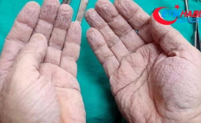 Cerrahın elleri sosyal medyayı salladı