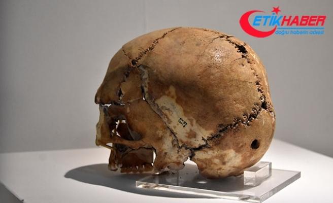 10 bin yıl önce ilk beyin ameliyatı yapılan kafatasına yoğun ilgi