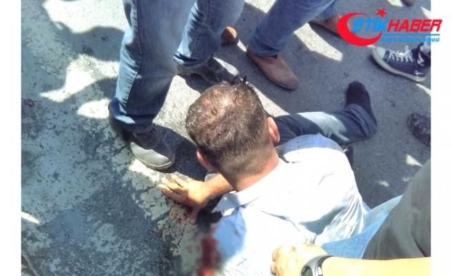 Esenyurt'ta Küçük Çocuğunun Kafasını Yol Ortasında Bariyerlere Vuran Baba Linç Edildi!