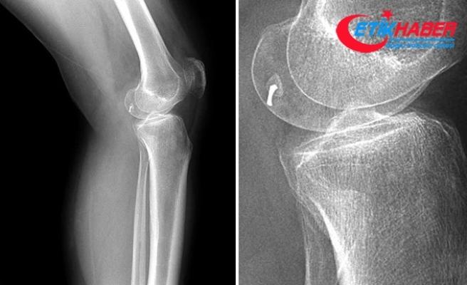 """Romatizmal hastalıklar """"osteoporoz"""" riskini artırıyor"""