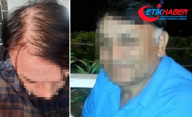 Saç ekiminden memnun kalmayan gıda mühendisi dava açtı