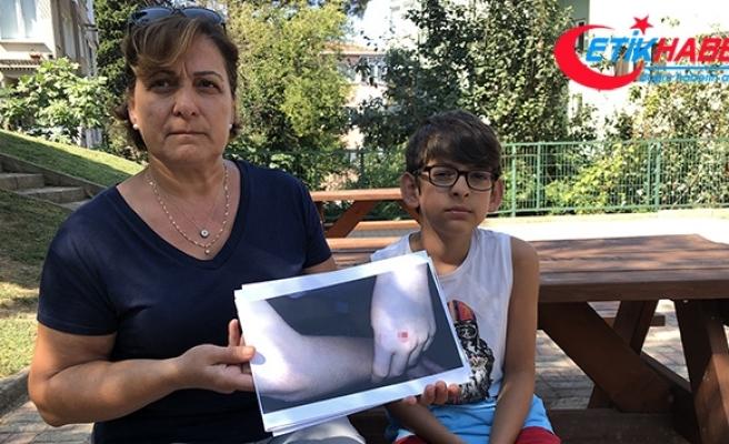Beykoz'da vatandaşlar köpek saldırılarına karşı nöbette