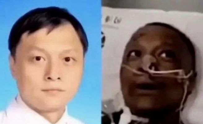 Korona nedeniyle ten rengi değişen Çinli doktor hayatını kaybetti