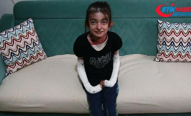 'Kelebek çocuk Elfida' hasta çocuklara yaşama azmini bıraktı