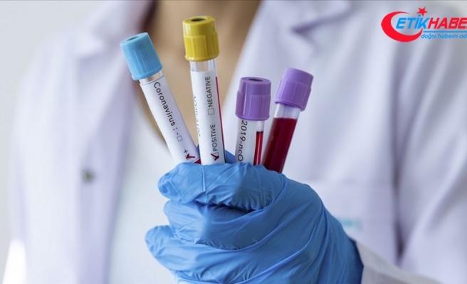 Kovid-19 aşı bulunduktan sonra 'diğer viral hastalıklar gibi olacak'
