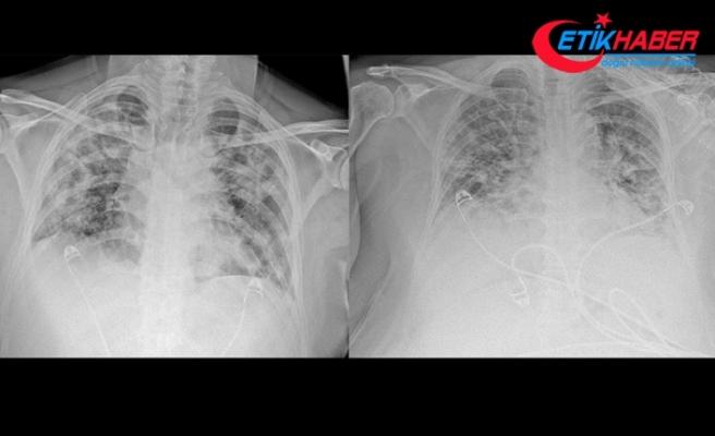 Koronavirüsün akciğerdeki ağır tahribatı, hastaların tomografi görüntülerine yansıdı