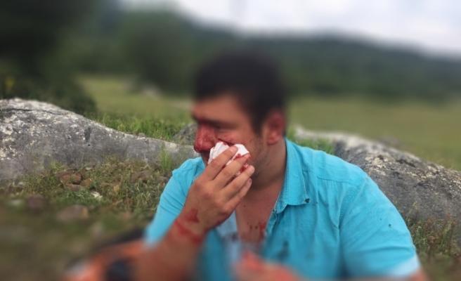 """Türkiye Gazeteciler Cemiyeti: """"İHA muhabiri Mustafa Uslu'ya yapılan saldırıyı kınıyoruz"""""""