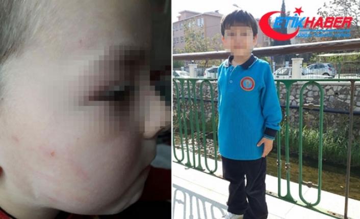 İlkokul öğrencisi okulda dövüldü, anne şikayetçi oldu